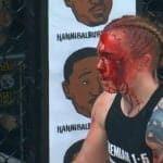 Video: Kal Schwartz logra un nocaut absurdamente sangriento en Invicta FC 28