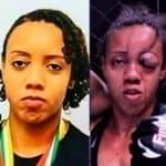 Horrible lesión de peleadora brasileña de MMA se vuelve viral