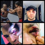 Eddie Alvarez sufrió horrible lesión tras su debut en ONE Championship