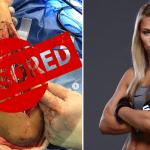 Fotos: Paige VanZant mostró los detalles de su operación al brazo