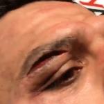 Rafael dos Anjos vendió cara su derrota ante Leon Edwards en UFC
