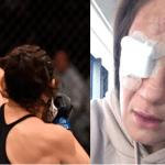 Karolina Kowalkiewicz da una actualización sobre la lesión ocular