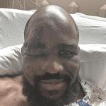 El drama del peleador de UFC que tras desmayarse se desfiguró la cara
