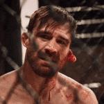 Casi pierde la oreja: Escalofriante lesión en Taura MMA