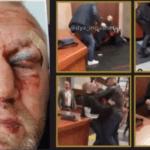 Sergei Kharitonov fue hospitalizado tras ser golpeado por un peleador de UFC